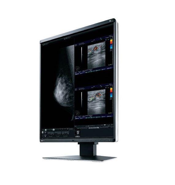 Monitorius mamografijai RX560