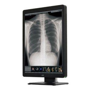 Radiologinis monitorius JVC CL-S300