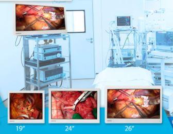 Monitoriai endoskopijai Medvix (19″, 24″, 26″)